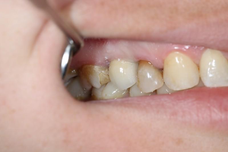 Natychmiastowa implantacja zęba